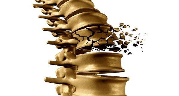 Obesità e osteoporosi complici nei malanni dell'età avanzata